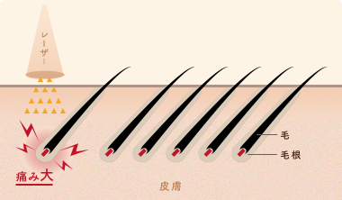 従来の脱毛(レーザーで毛根を熱破壊)