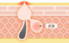 丘疹(きゅうしん):赤ニキビ