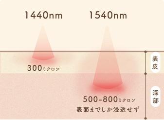 非蒸散型フラクショナルレーザー