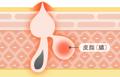 膿疱(のうほう):膿ニキビ