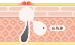 面疱(めんほう):白ニキビ